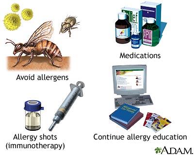 How to treat allergy