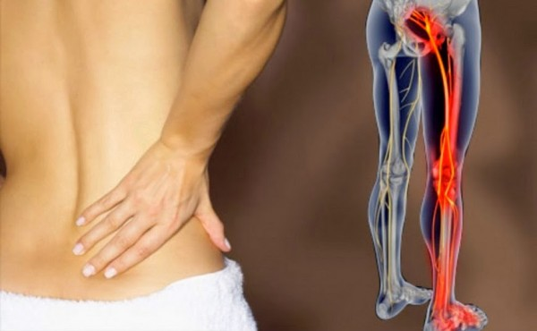 8 Home Remedies For Lower Back Pain That Actually Work