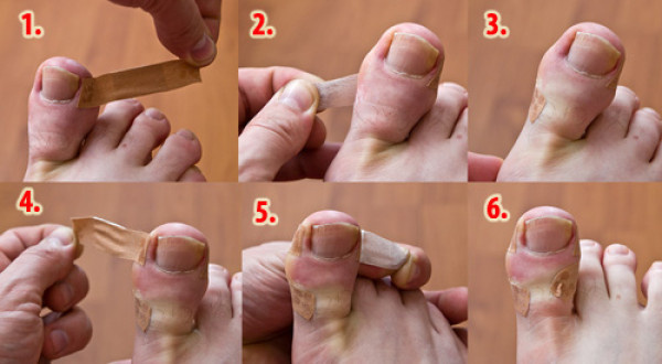 get-rid-of-ingrown-toenails-1