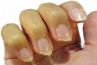 18 Tips to Prevent Nails from Breaking, Splitting, Peeling, Chipping