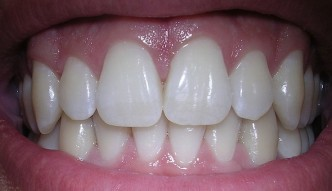 A Holistic Approach For Gum Disease And Cavities