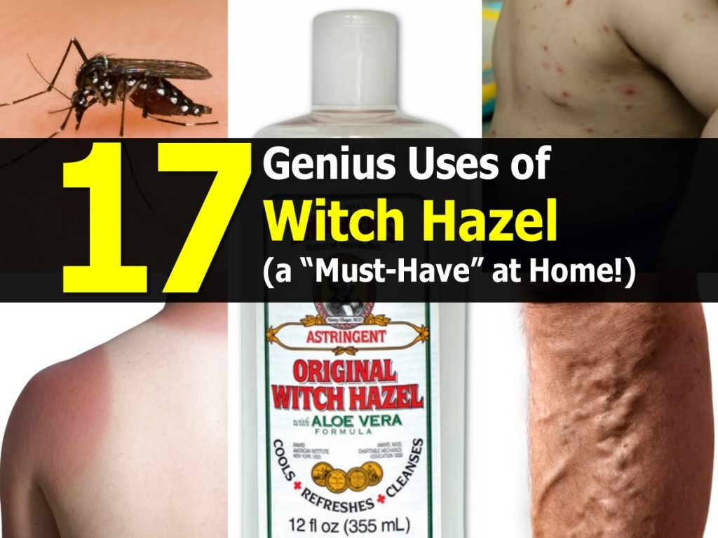 17 Genius Uses of Witch Hazel
