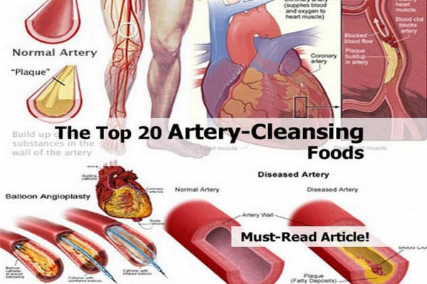Top 20 Artery-Cleansing Foods