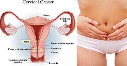7 Warning Signs of Cervical Cancer that Women Often Ignore!