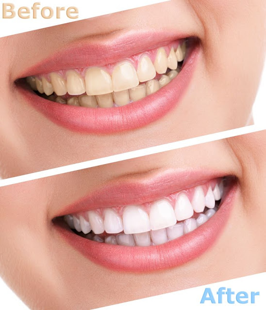 How To Whiten Teeth At Home 1