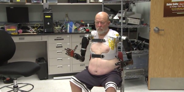 How Technology Helps This Man To Have New Arms