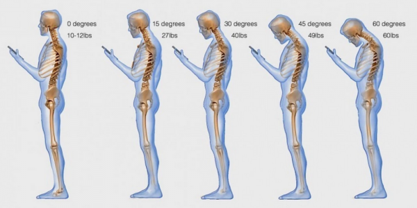 How Your Texting or Facebooking Posture Is Killing You
