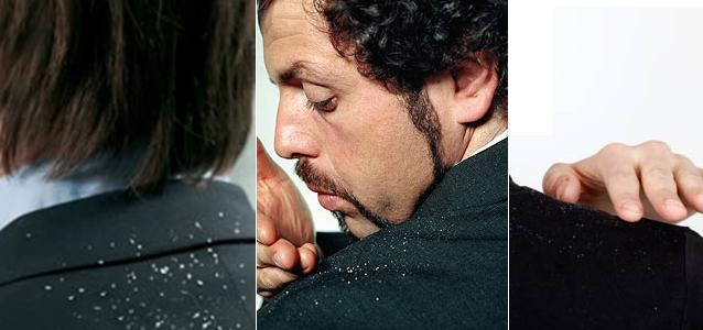 How-to-Get-Rid-of-Dandruff-Fast