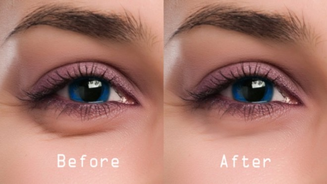 Remove Under Eye Dark Circles