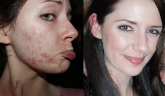 acne-removal-how-to-get-clear-skin-naturally