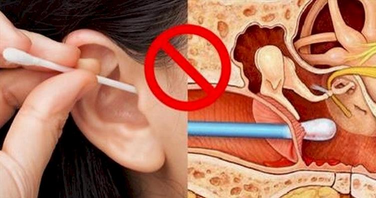 Как вычистить уши в домашних условиях