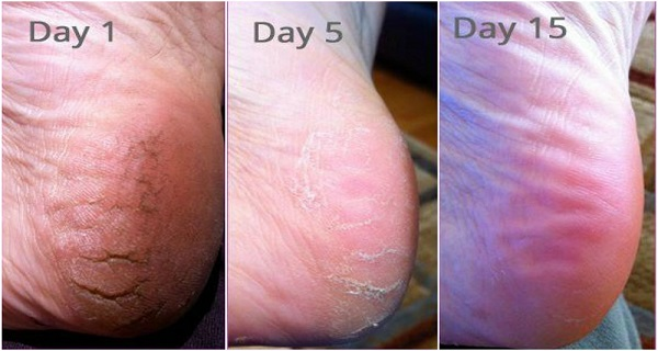 never-suffer-from-cracked-heels-corns-and-calluses-again