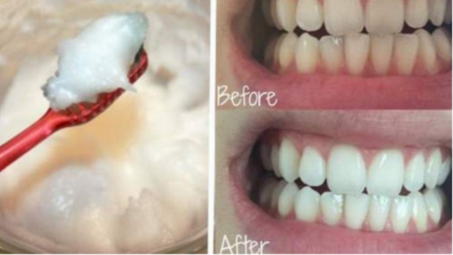 how-to-oil-pull-for-white-teeth