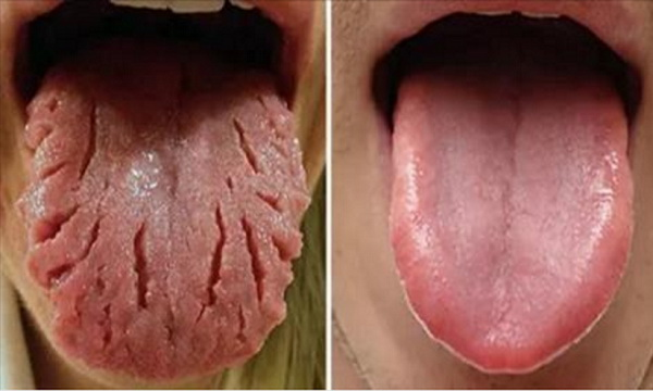 what-your-tongue-says-about-your-health