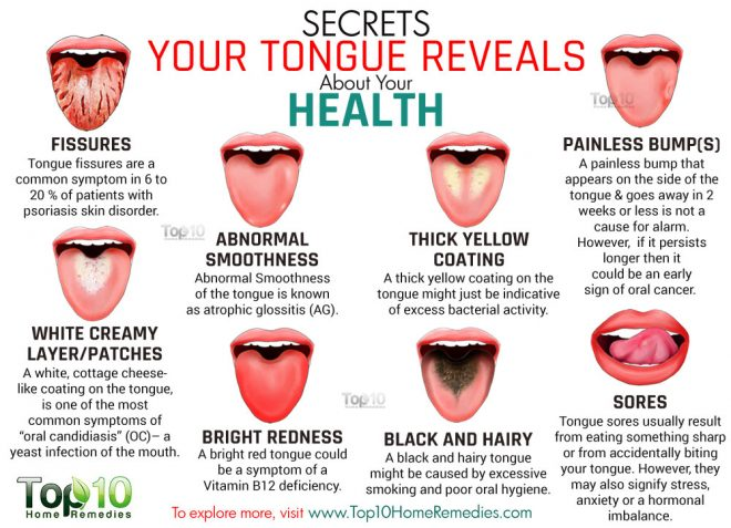 what-your-tongue-says-about-your-health-1