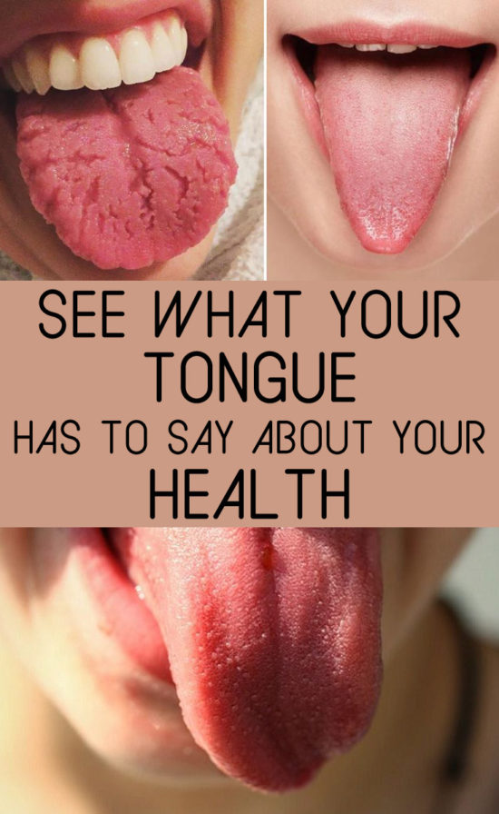 what-your-tongue-says-about-your-health-2